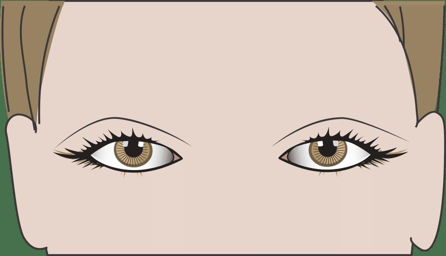 Abgesunkene Augenbrauen