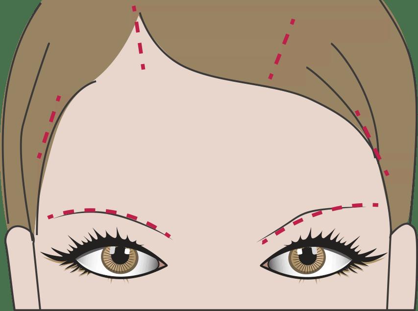 OP: Augenbrauen oder Stirnlifting