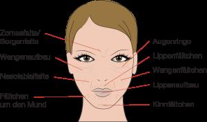 Behandlungsmöglichkeit mit Hyaluron