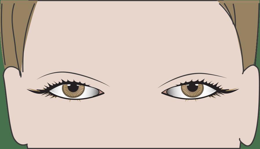 Schlupflider + abgesunkene Augenbrauen
