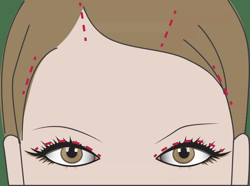 OP: Lidstraffung und Stirnlifting