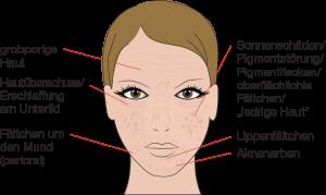 Behandlungsmöglichkeit mit chemischem Peeling
