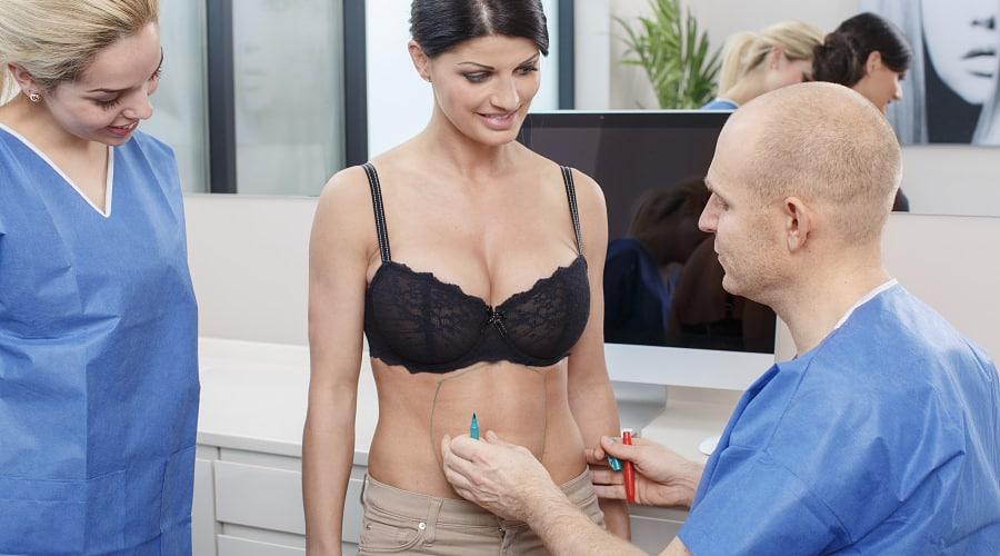 Chirurg zeichnet bei Patientin für Bauchdeckenstraffung an