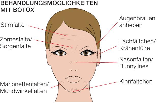 Botox®-Behandlung und Hyaloronbehandlung im Vergleich