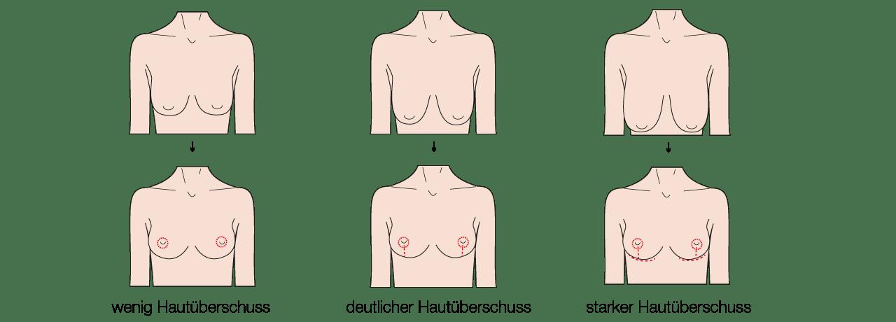 Bruststraffung durch Schönheitschirurg in Waldshut an der Schweizer Grenze