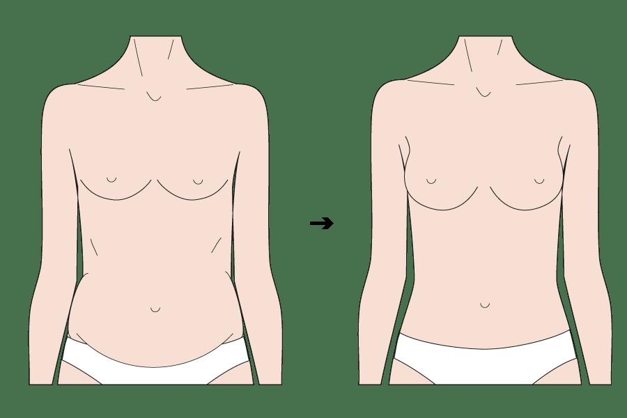 Beratung für Brustvergrößerung mit Eigenfett durch Schönheitschirurg in Klinik für Schönheitsoperationen