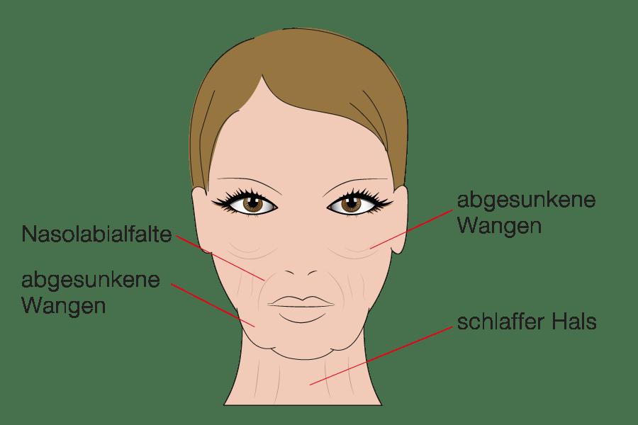 Kompetente Beratung für Facelifting durch Schönheitschirurg in Klinik für Schönheitsoperationen