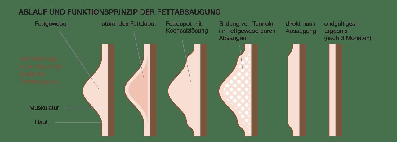 Fettabsaugung durch plastischen Chirurgen in Waldshut und Lörrach