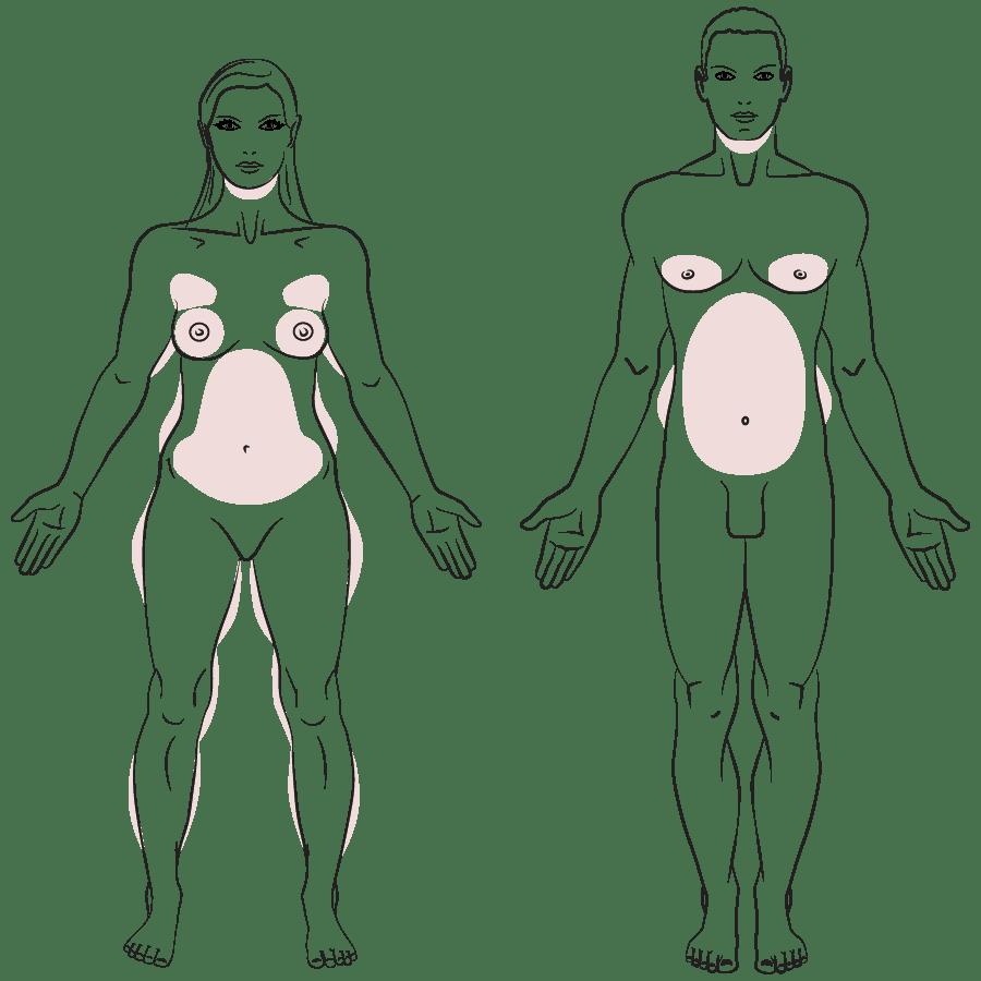 Fettabsaugung durch plastischen Chirurgen, Schönheitsklinik, Waldshut, Lörrach, Zürich, Basel