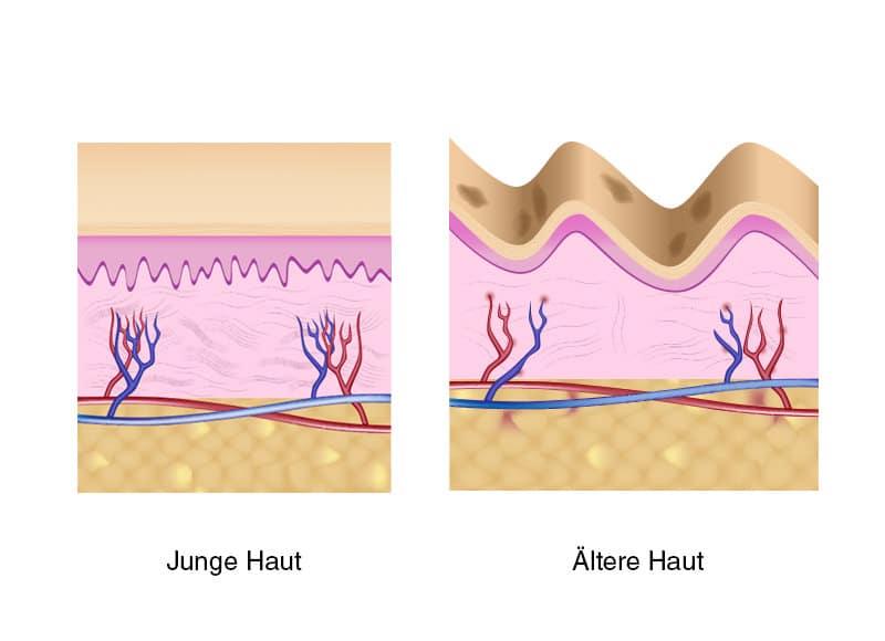 Beratung für die Hautverjüngung durch Schönheitschirurg in Klinik für Schönheits-OP