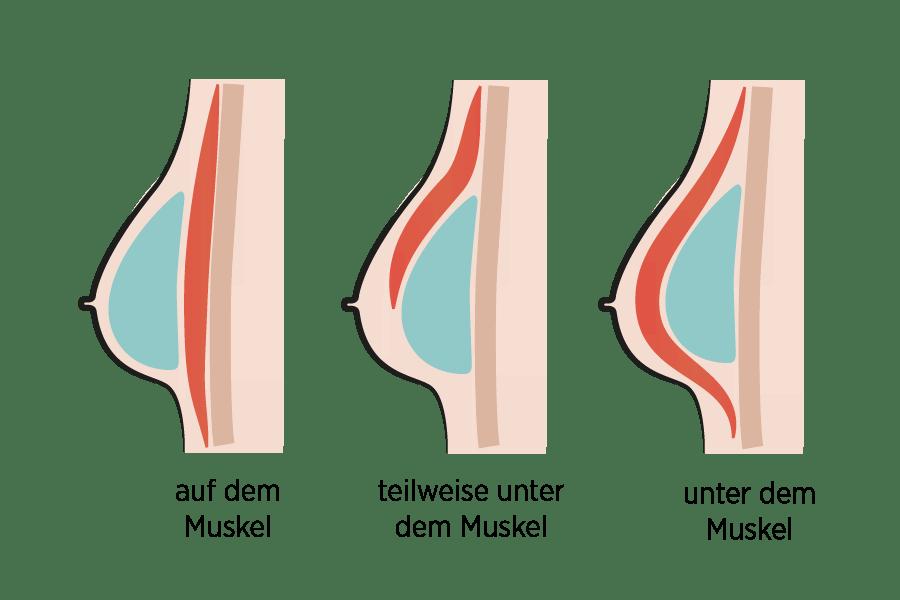 Implantat auf oder unter dem Muskel Brustvergrößerung in Deutschland