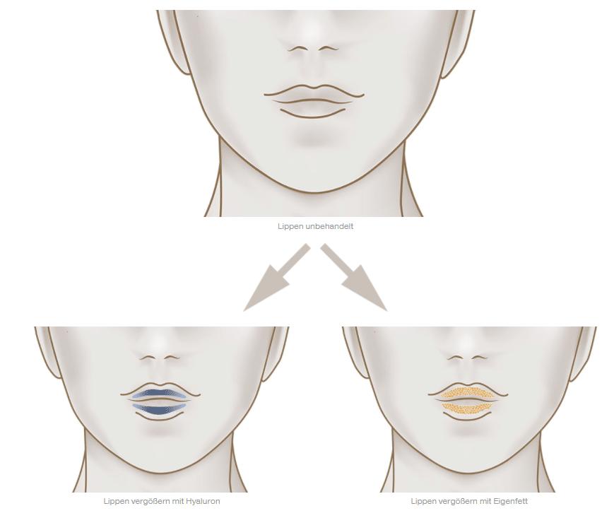 Lippenbehandlungen bei der Dorow Clinic im Vergleich