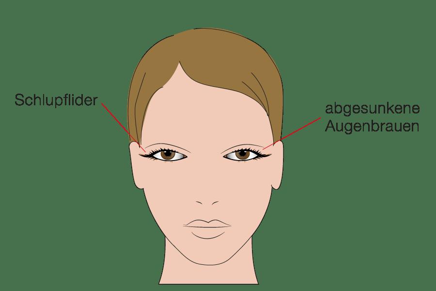 Kompetente Beratung für Oberlidkorrektur durch Schönheitschirurg in Klinik für Schönheitsoperationen