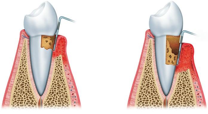Beratung für Parodontosebehandlung durch Zahnmediziner in Zahnklinik in der Nähe der Schweizer Grenze
