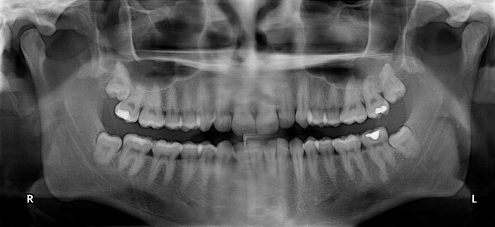 Beratung für Entfernung der Weisheitszähne bei Zahnarzt in Klinik für Zahnimplantate und Zahnersatz am Hochrhein
