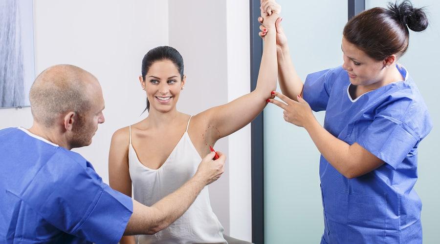 Arzt zeichnet an der Achsel für eine Schweißdrüsenentfernung