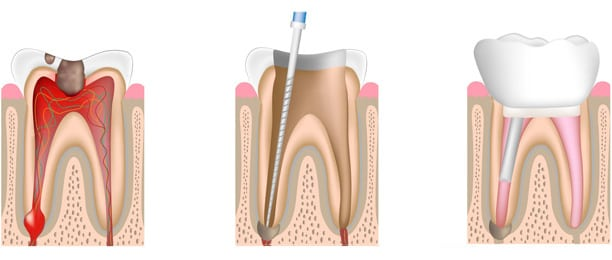 Beratung für Wurzelkanalbehandlung durch Zahnmediziner in Zahnklinik in der Nähe der Schweizer Grenze