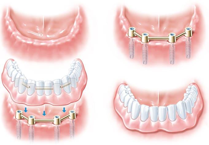 Zahnprothesen bei der Dorow Clinic in Waldshut und Lörrach