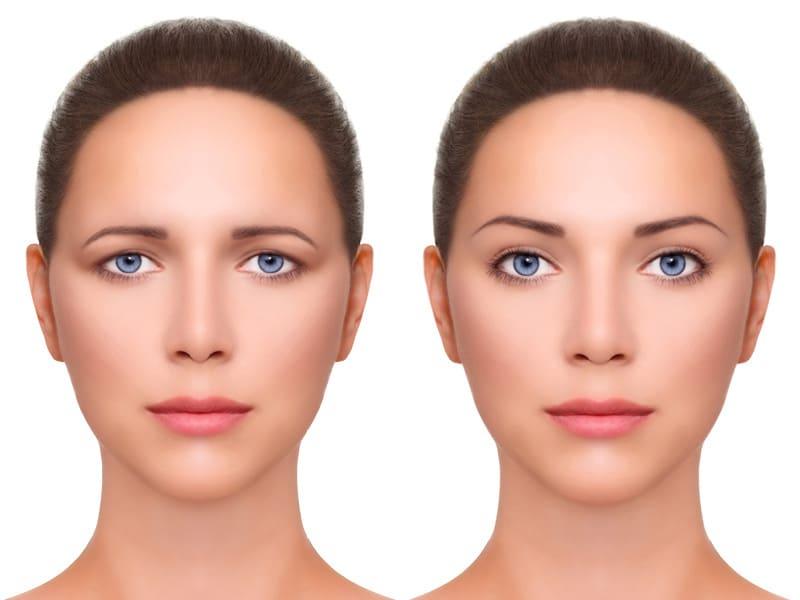 Kompetente Beratung für Stirn- und Brauenlifting durch Schönheitschirurg in Klinik für Schönheitsoperationen