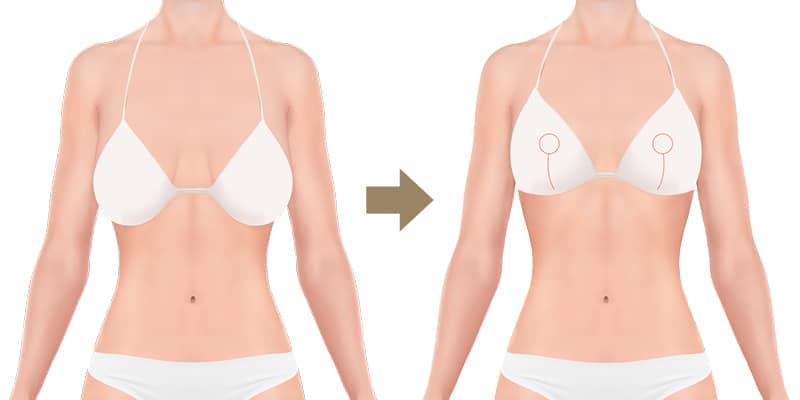 B nachher vorher von brustvergrößerung auf bilder d Brustimplantate formen