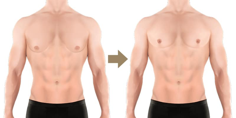 Weibliche brust will mann tavasisvi: Wie