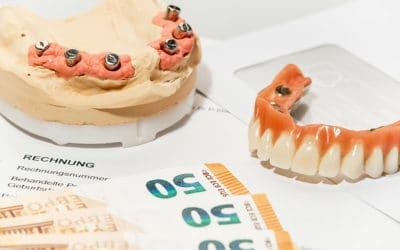 Zahnimplantate – Wann zahlt die Versicherung / Krankenkasse?