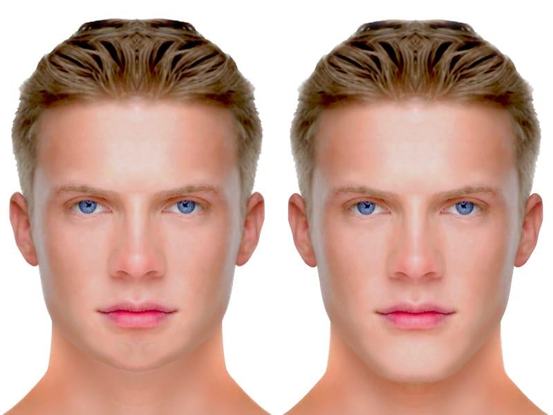 Nachher männer nasen op vorher chauglophdisling: Nasen